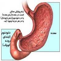 درمان ازدیاد اسید معده